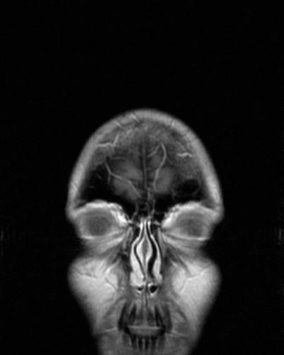 Blanket MRI
