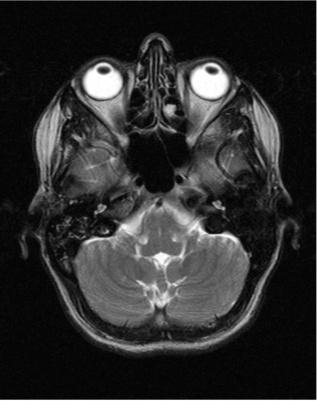 MRI Peek